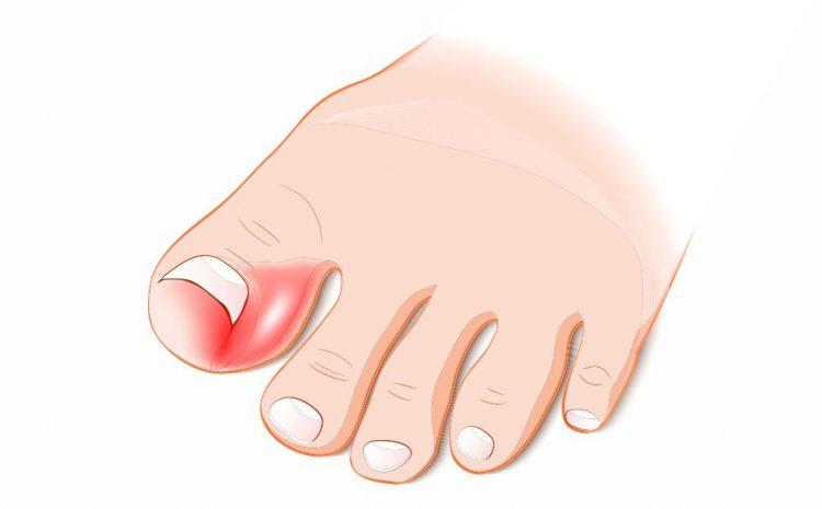 Operația unghiei încarnate